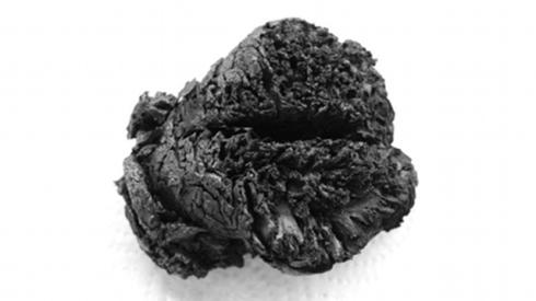 Cervello fossile rinvenuto in Turchia