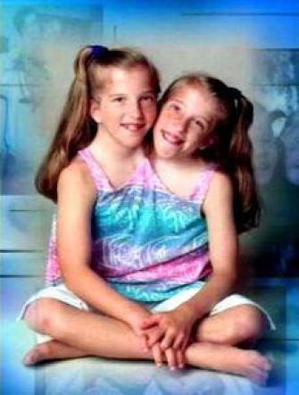 Foto di gemelle siamesi